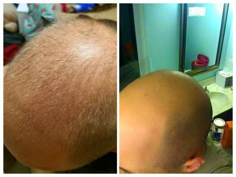 bald before after