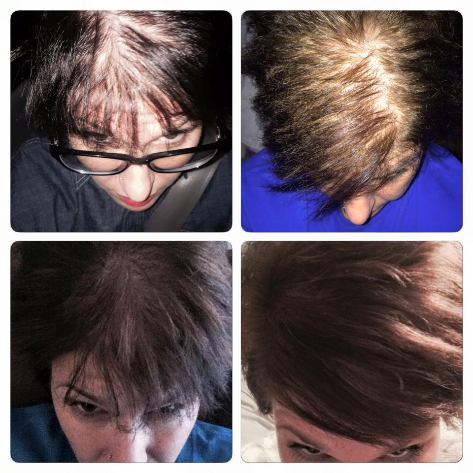hair loss Hair loss can affect just your scalp or your entire body it can be the result of  heredity, hormonal changes, medical conditions or medications.